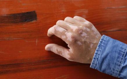 白癜风的鉴别诊断有几种方法