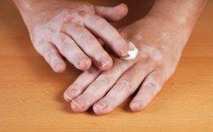 女性白癜风患者预防饮食方面要注意什么